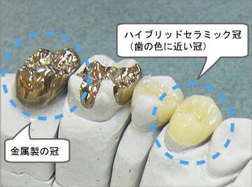 しのだ歯科医院   かぶせ物(クラ...